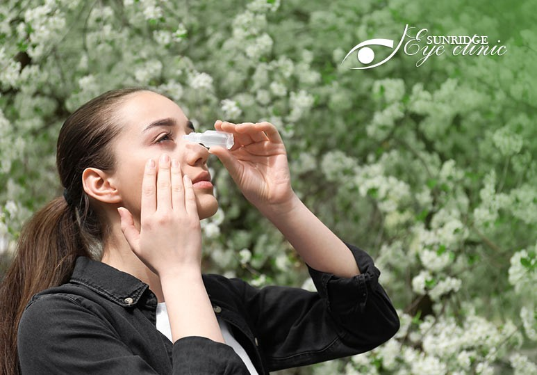 10 Steps to Alleviate the Symptoms of Eye Allergies