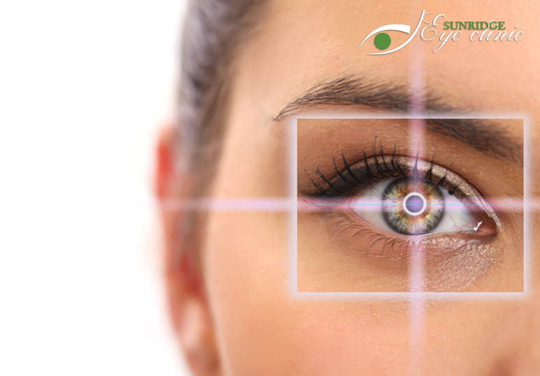 How To Know If You are A Good Candidate For Laser Eye Surgery