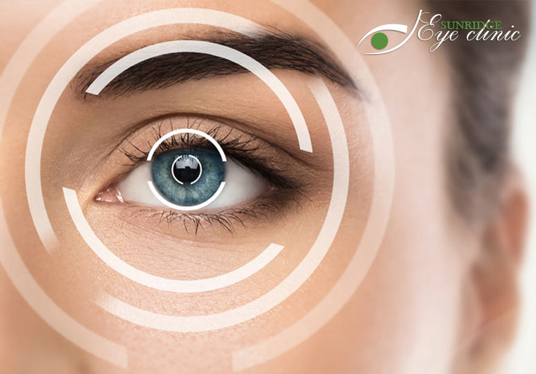 What To Expect During Your LASIK Eye Surgery Exam