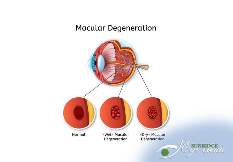 Sunridge Optometry - Blog - Macular degeneration
